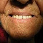 שיניים תותבות, תותבות בייצור אישי